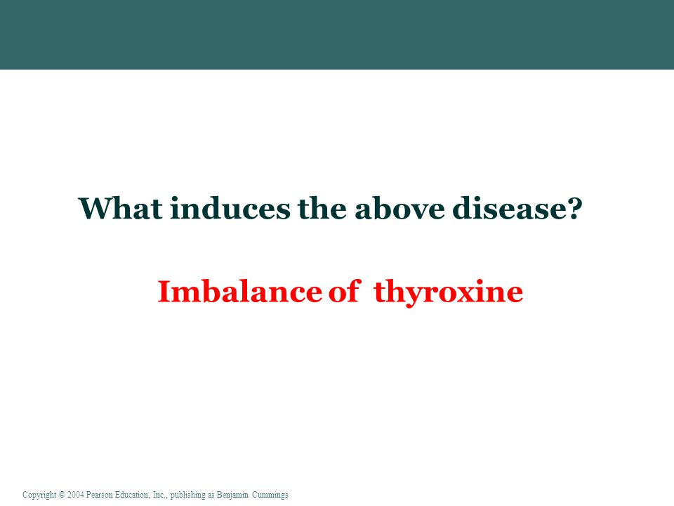 What induces the above disease Imbalance of thyroxine