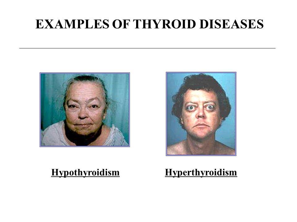 EXAMPLES OF THYROID DISEASES