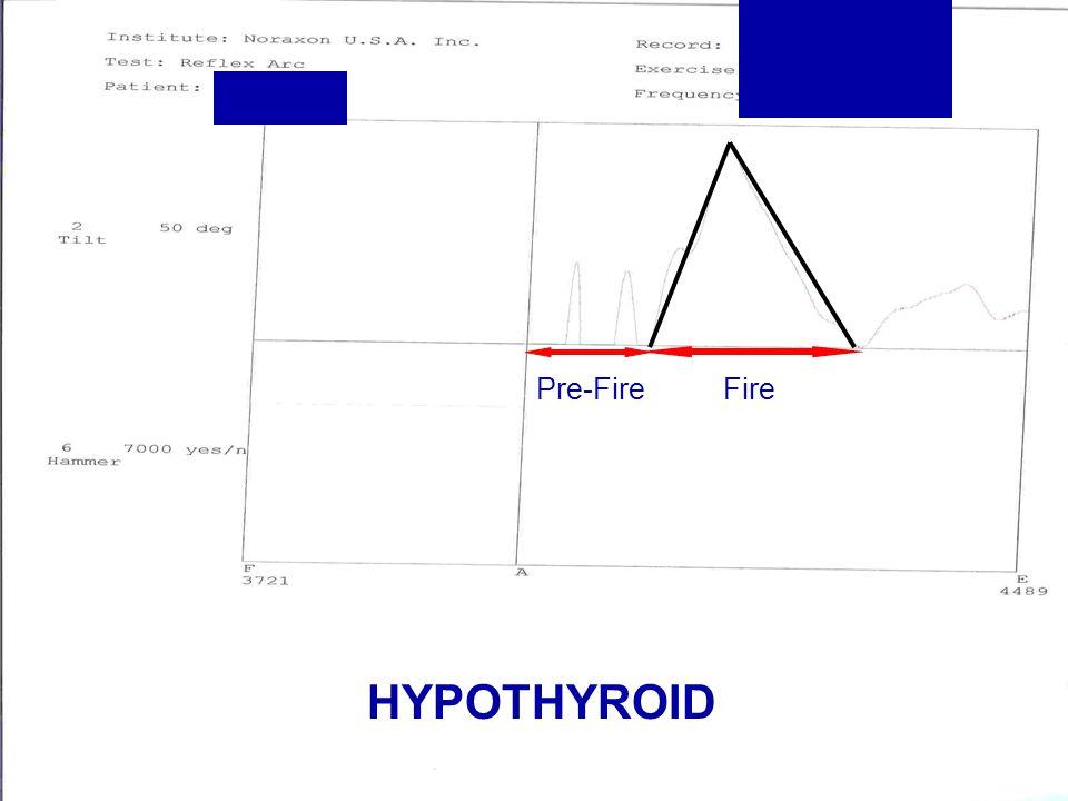 Pre-Fire Fire HYPOTHYROID