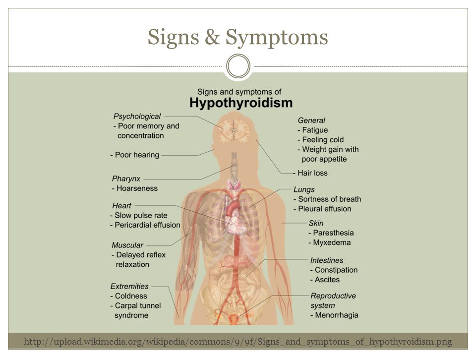 the signs and symptoms of premenstrual syndrome disease Premenstrual dysphoric disorder, or pmdd, is a severe form of premenstrual syndrome (pms) that doctors think as many as three-quarters of menstruating women have some signs of pms but premenstrual dysphoric disorder (pmdd) is different it causes emotional and physical symptoms.