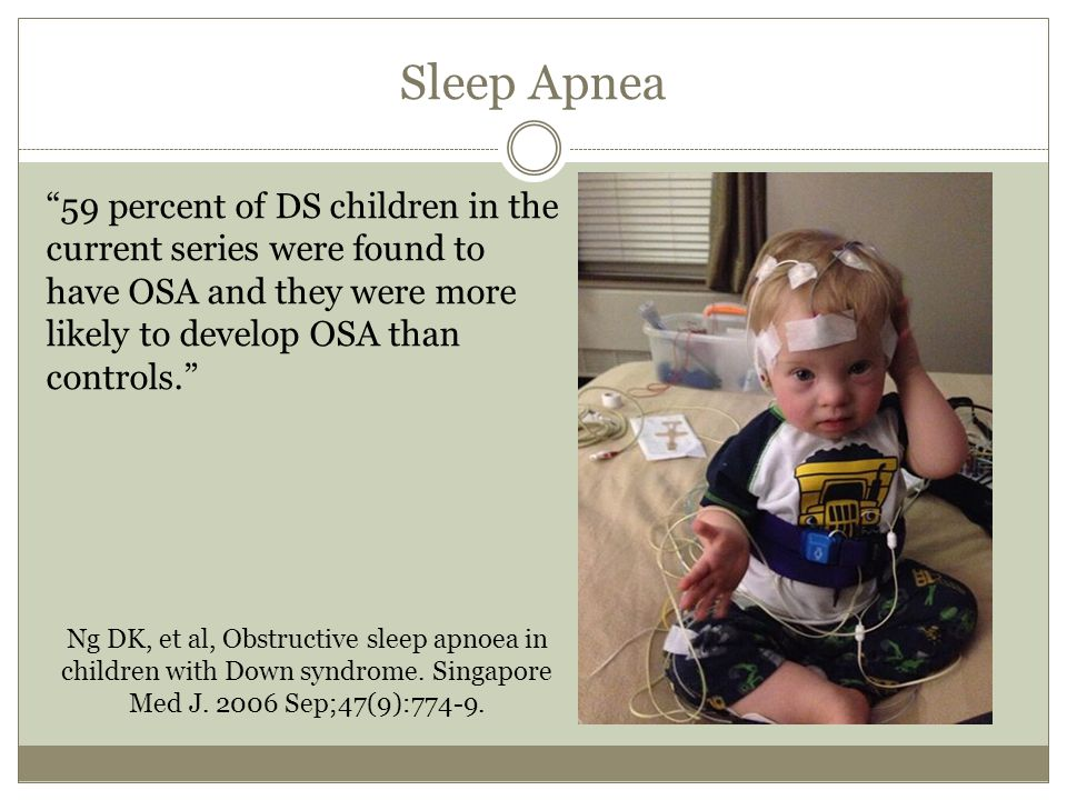 Sleep Apnea 59 percent of DS children in the current series were found to have OSA and they were more likely to develop OSA than controls.