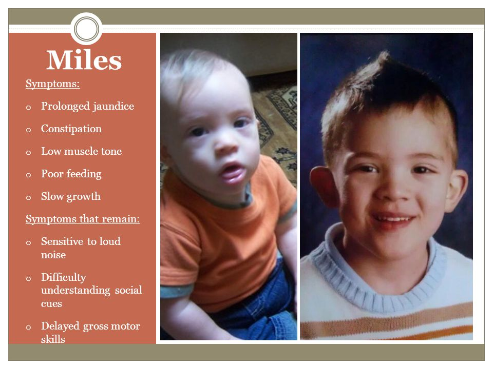 Miles Symptoms: Prolonged jaundice Constipation Low muscle tone