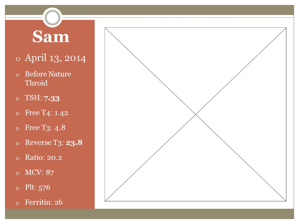 Sam April 13, 2014 Before Nature Throid TSH: 7.33 Free T4: 1.42