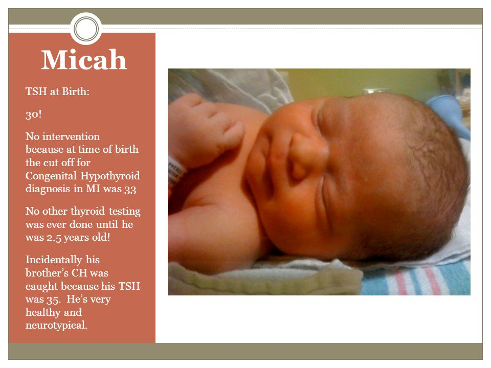 Micah TSH at Birth: 30! No intervention because at time of birth the cut off for Congenital Hypothyroid diagnosis in MI was 33.