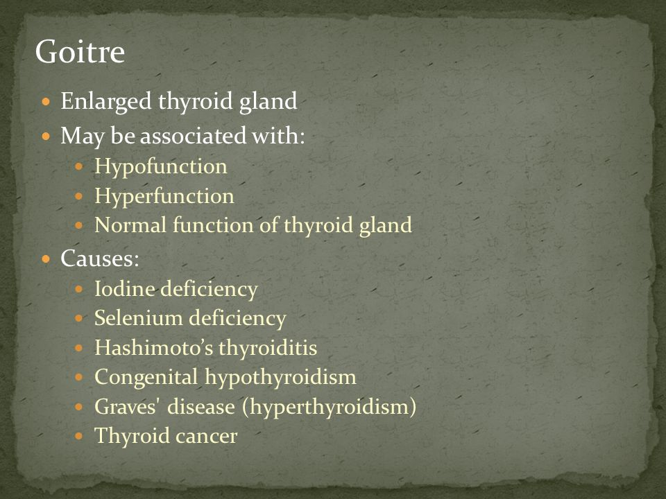 Goitre Enlarged thyroid gland May be associated with: Causes: