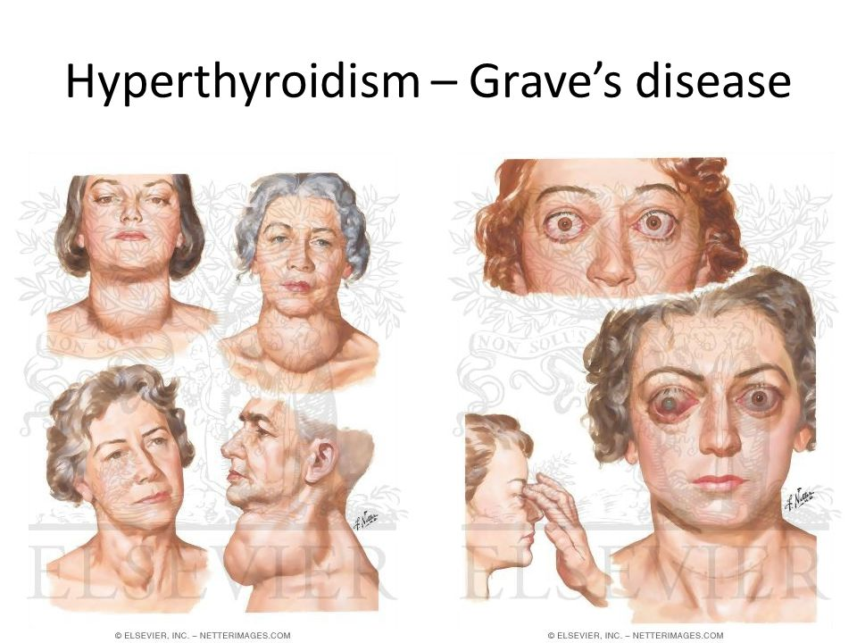 Hyperthyroidism – Grave's disease