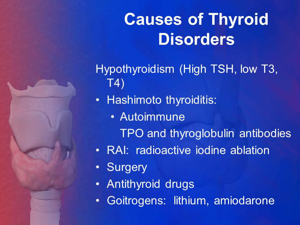 Causes of Thyroid Disorders