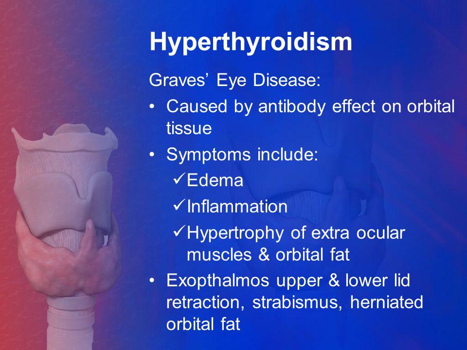 Hyperthyroidism Graves' Eye Disease: