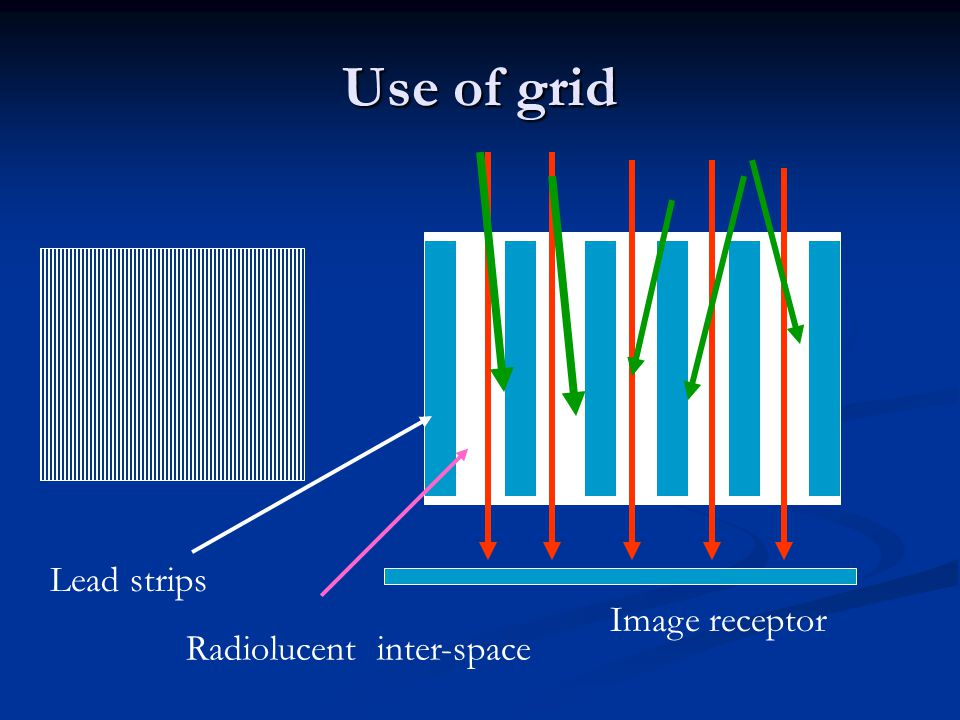 Use of grid Lead strips Image receptor Radiolucent inter-space