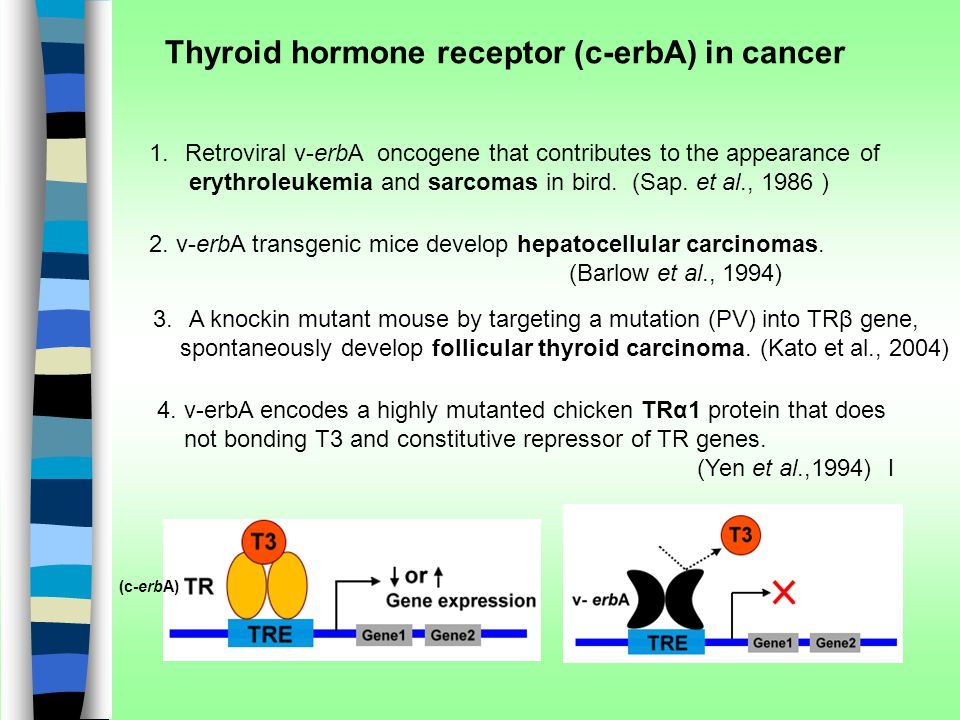 Thyroid hormone receptor (c-erbA) in cancer