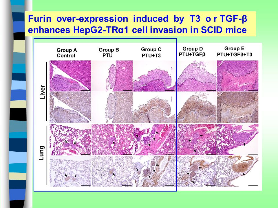 Furin over-expression induced by T3 o r TGF-β