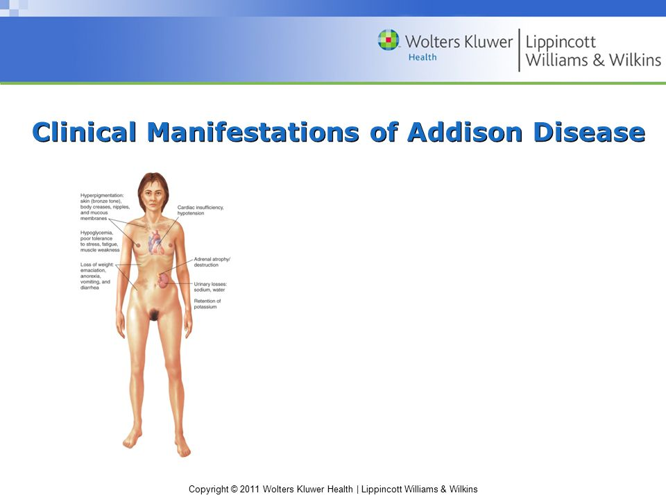 Clinical Manifestations of Addison Disease