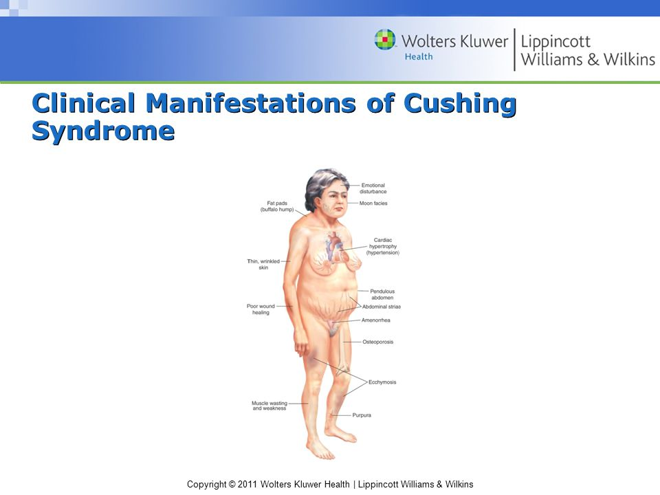 Clinical Manifestations of Cushing Syndrome
