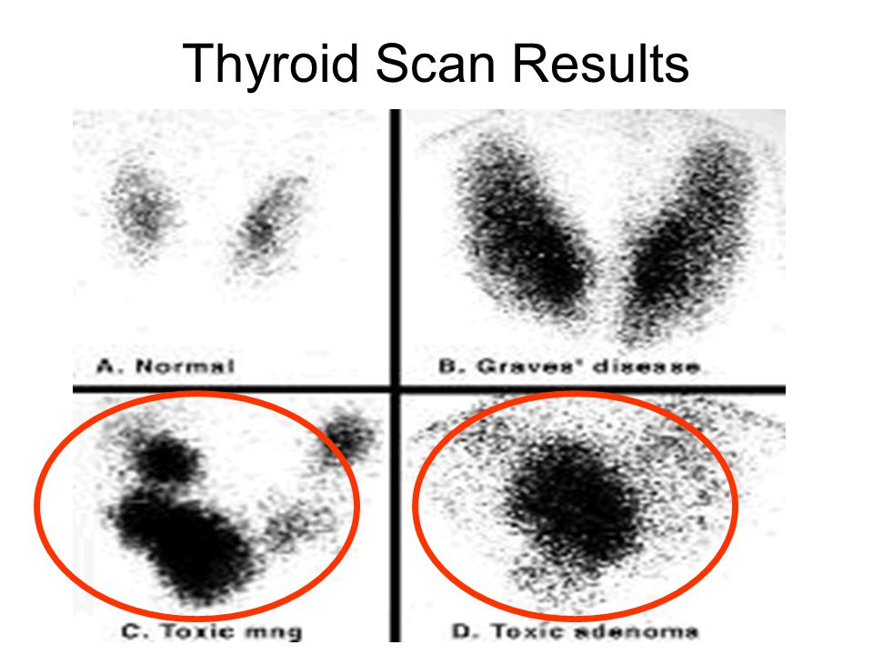 Thyroid Scan Results