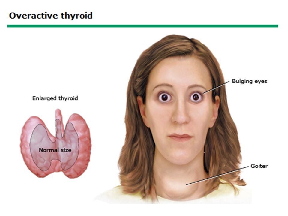 The thyroid gland enlarges (called a goiter) and makes excessive amounts of thyroid hormone, causing symptoms of hyperthyroidism