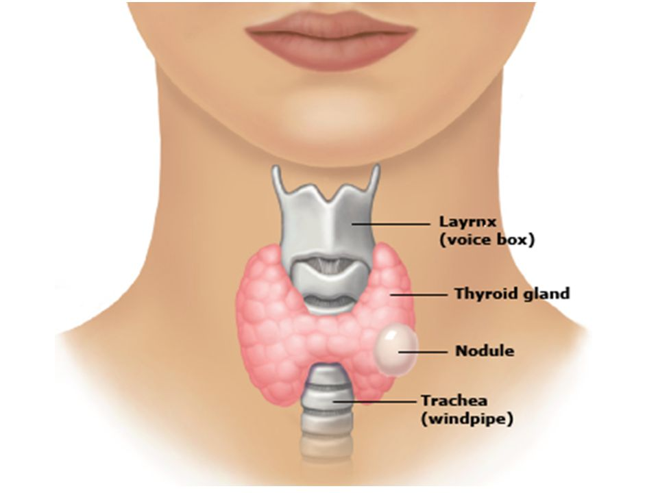 This figure shows a thyroid nodule on the left side of the thyroid