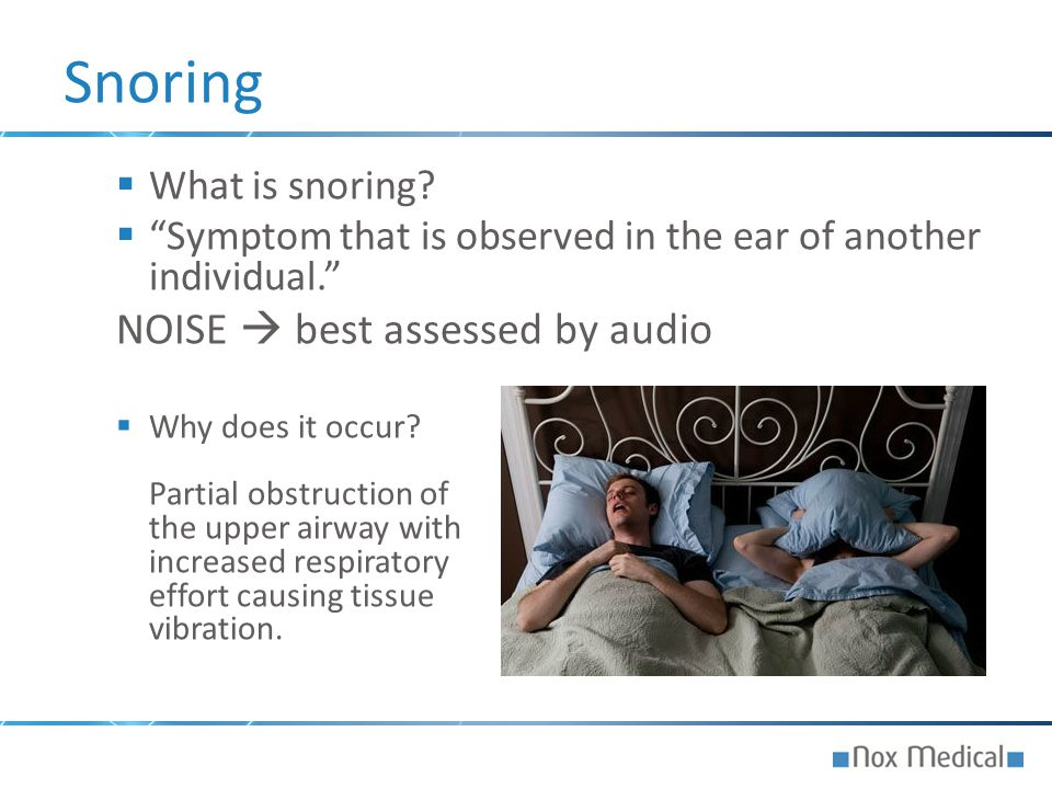 Snoring NOISE  best assessed by audio What is snoring