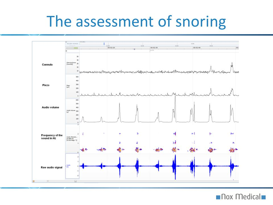 The assessment of snoring