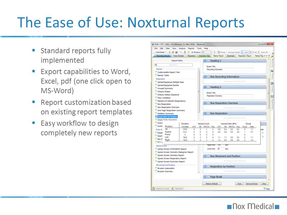 The Ease of Use: Noxturnal Reports