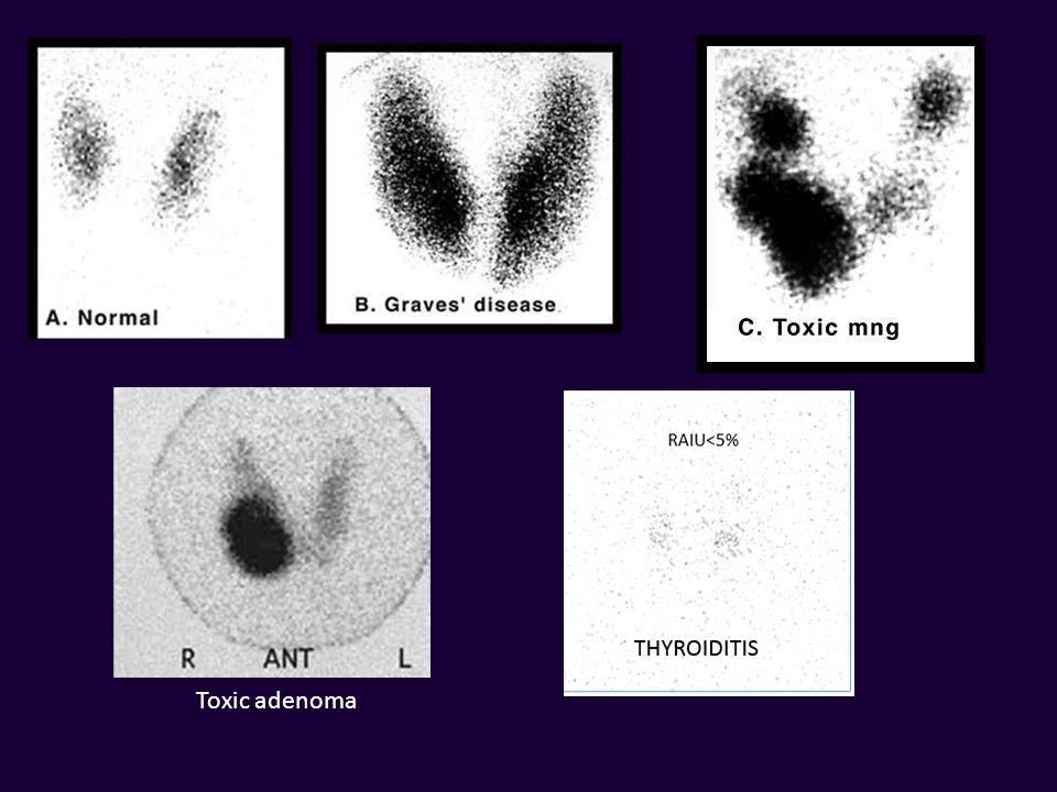 Toxic adenoma