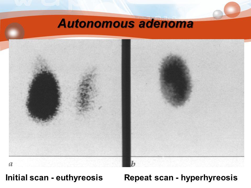 Autonomous adenoma Initial scan - euthyreosis