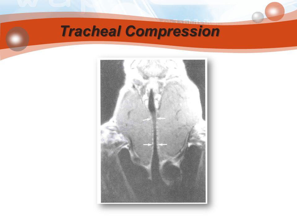 Tracheal Compression