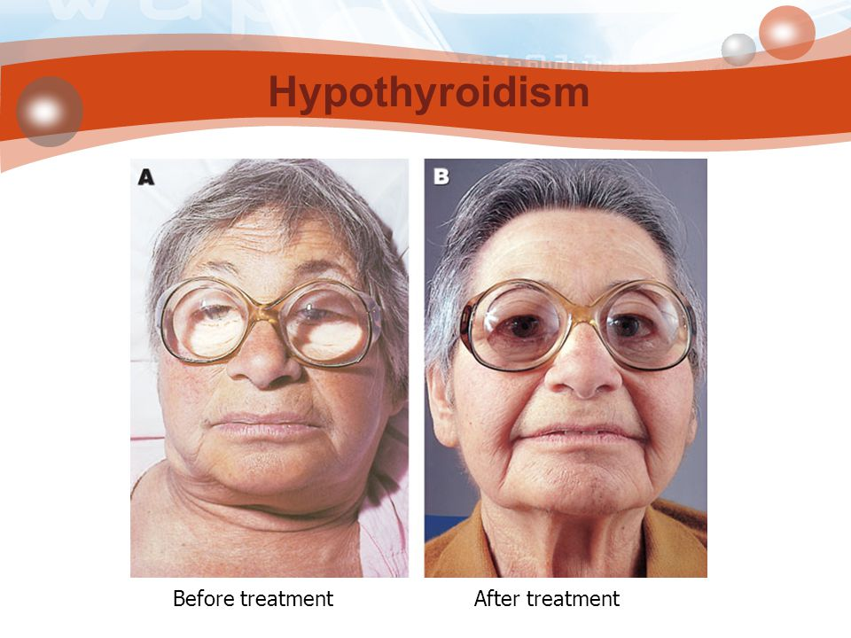 Hypothyroidism Before treatment After treatment
