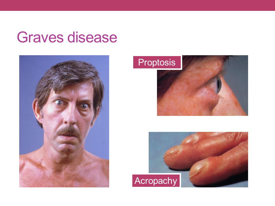 Graves disease Proptosis Acropachy