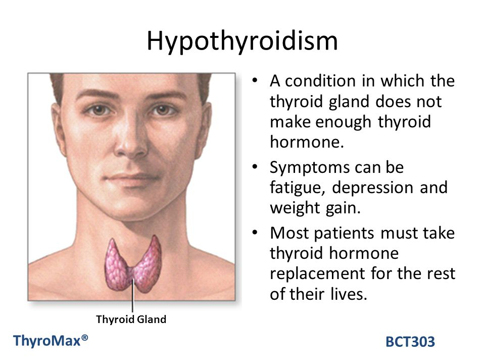 Hypothyroidism A condition in which the thyroid gland does not make enough thyroid hormone. Symptoms can be fatigue, depression and weight gain.
