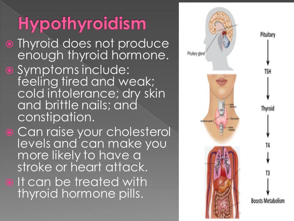 Hypothyroidism Thyroid does not produce enough thyroid hormone.