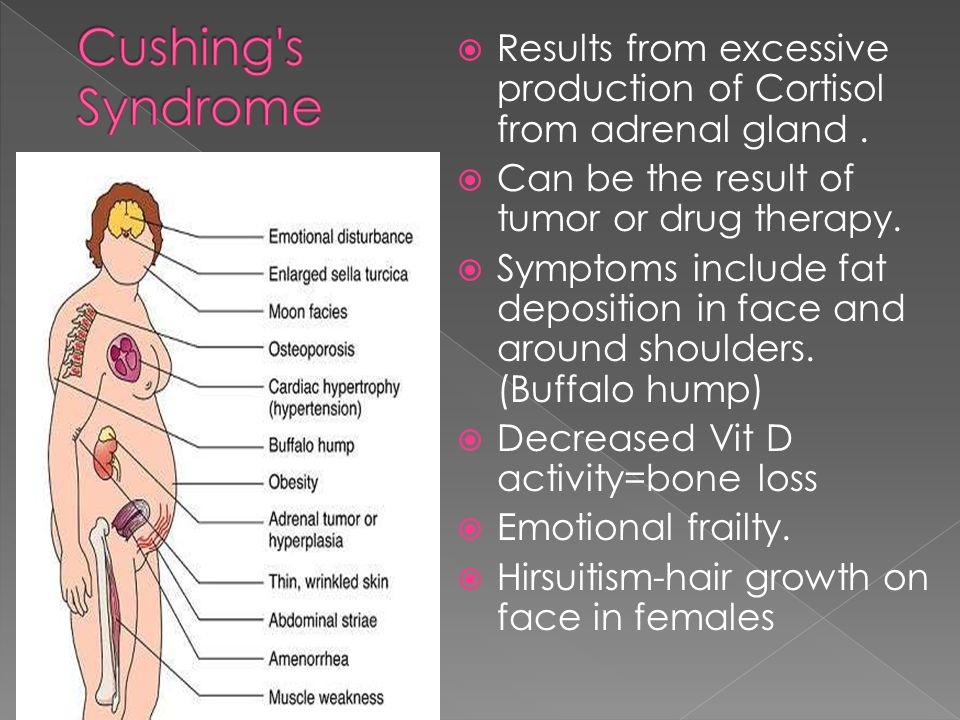 Cushing s Syndrome Results from excessive production of Cortisol from adrenal gland . Can be the result of tumor or drug therapy.