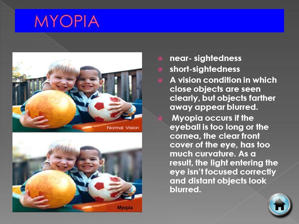 MYOPIA near- sightedness short-sightedness