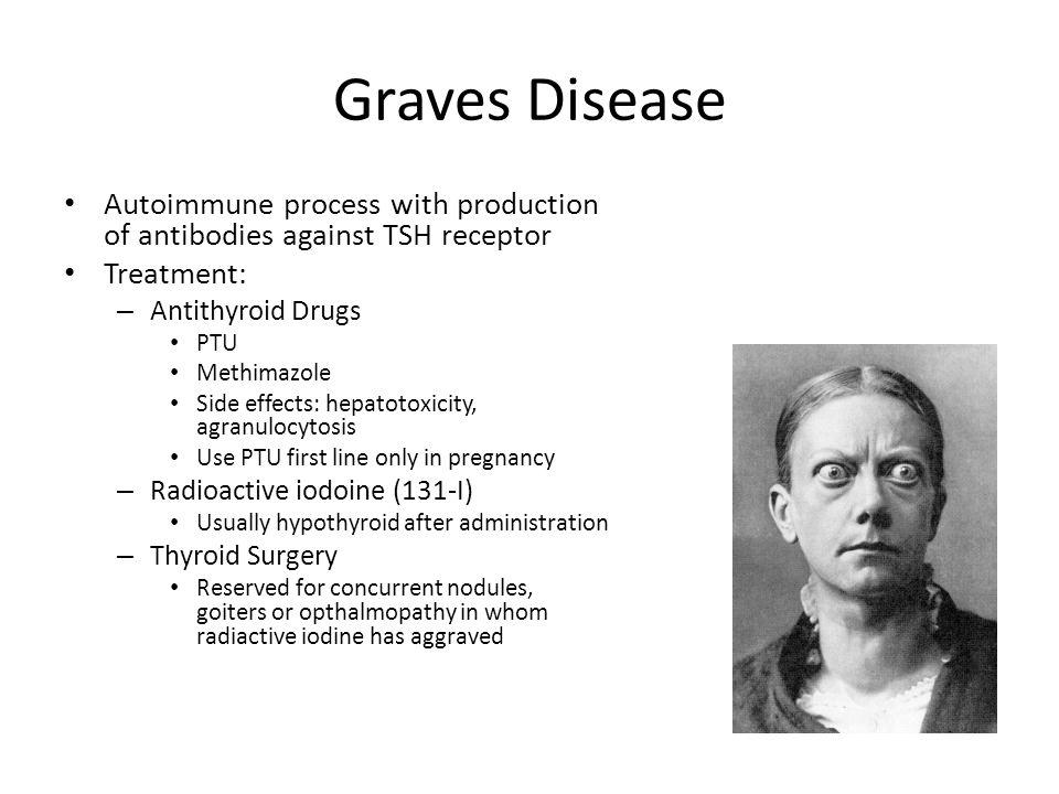 Graves Disease Autoimmune process with production of antibodies against TSH receptor. Treatment: Antithyroid Drugs.
