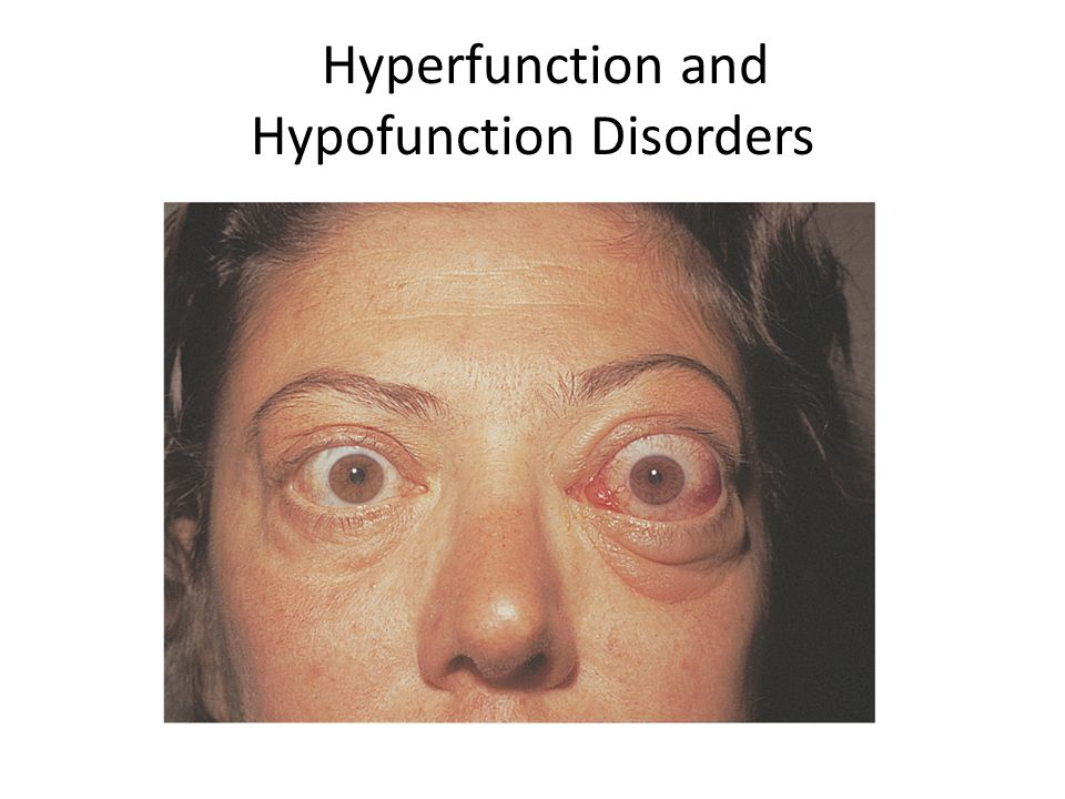 Hyperfunction and Hypofunction Disorders