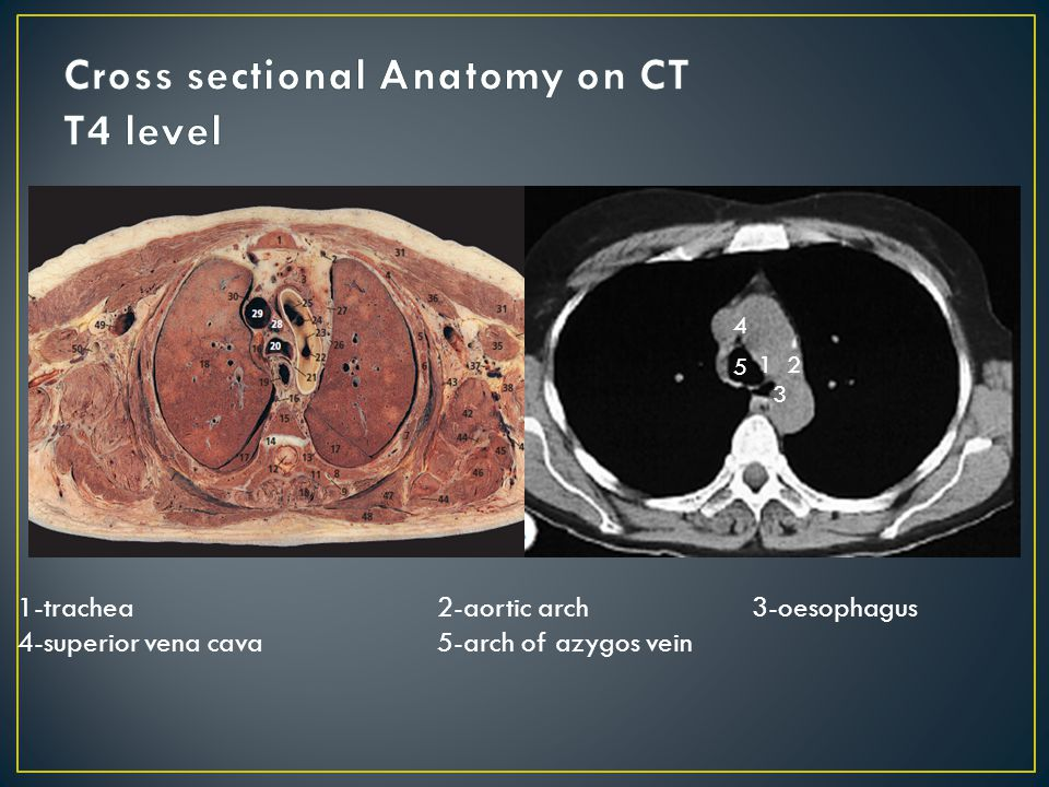 Cross sectional anatomy ct