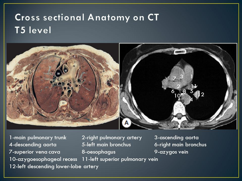 Cross Sectional Anatomy Ct 532799 Follow4morefo