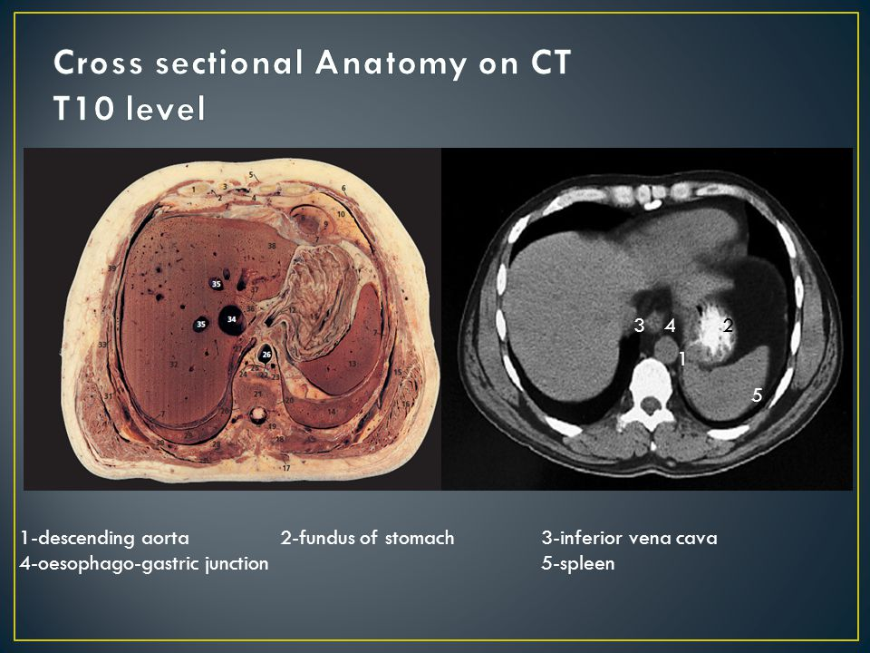 Ct sectional anatomy
