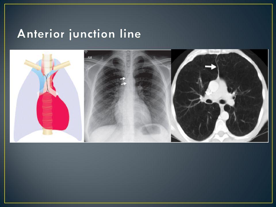 Anterior junction line