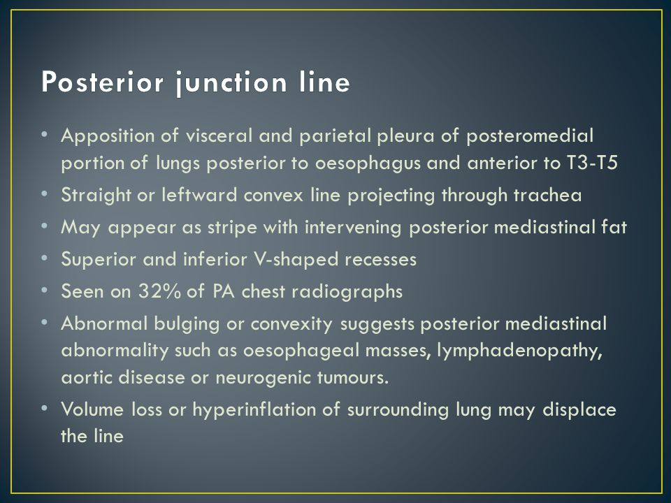 Posterior junction line