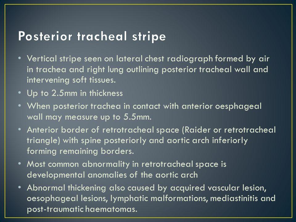 Posterior tracheal stripe