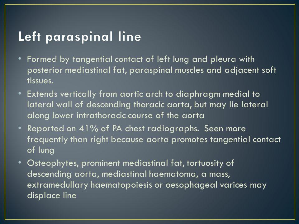 Left paraspinal line