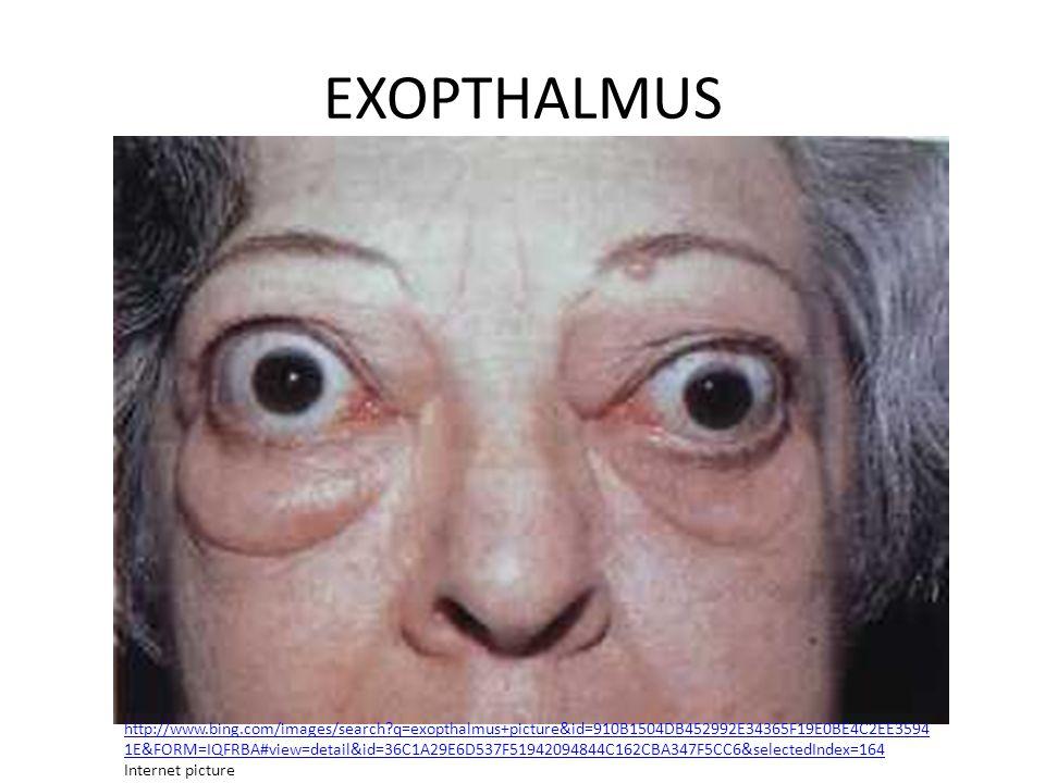 EXOPTHALMUS