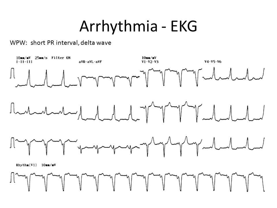 Arrhythmia - EKG WPW: short PR interval, delta wave