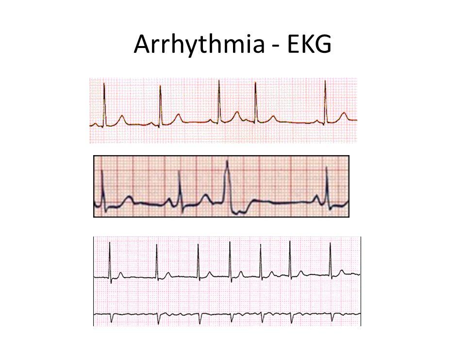 Arrhythmia - EKG