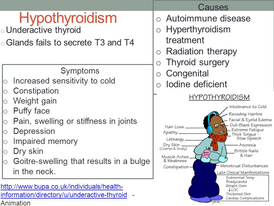 Hypothyroidism Causes Autoimmune disease Hyperthyroidism treatment