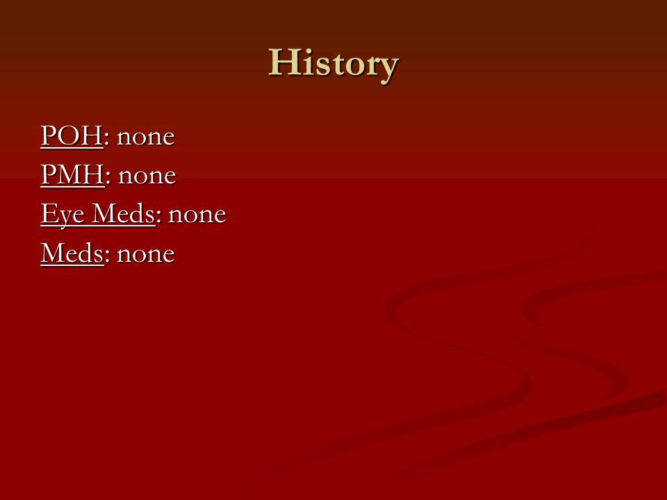History POH: none PMH: none Eye Meds: none Meds: none FOH: Glaucoma