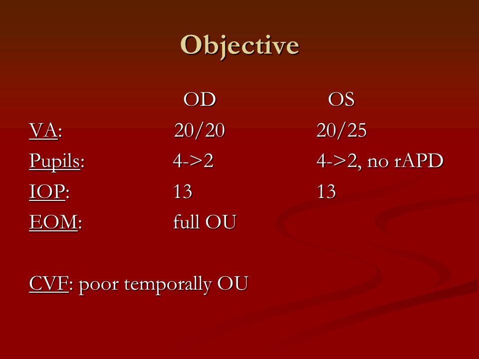 Objective OD OS VA: 20/20 20/25 Pupils: 4->2 4->2, no rAPD