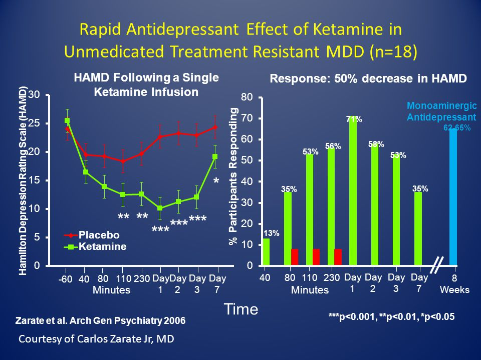HAMD Following a Single Ketamine Infusion