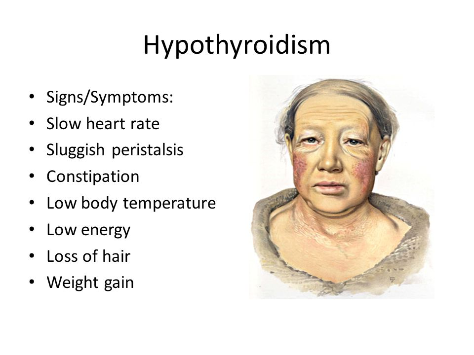 Hypothyroidism Signs/Symptoms: Slow heart rate Sluggish peristalsis
