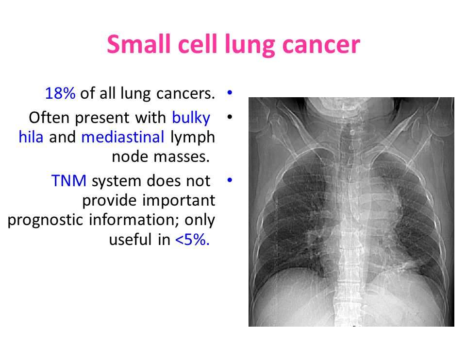 Small cell lung cancer 18% of all lung cancers.